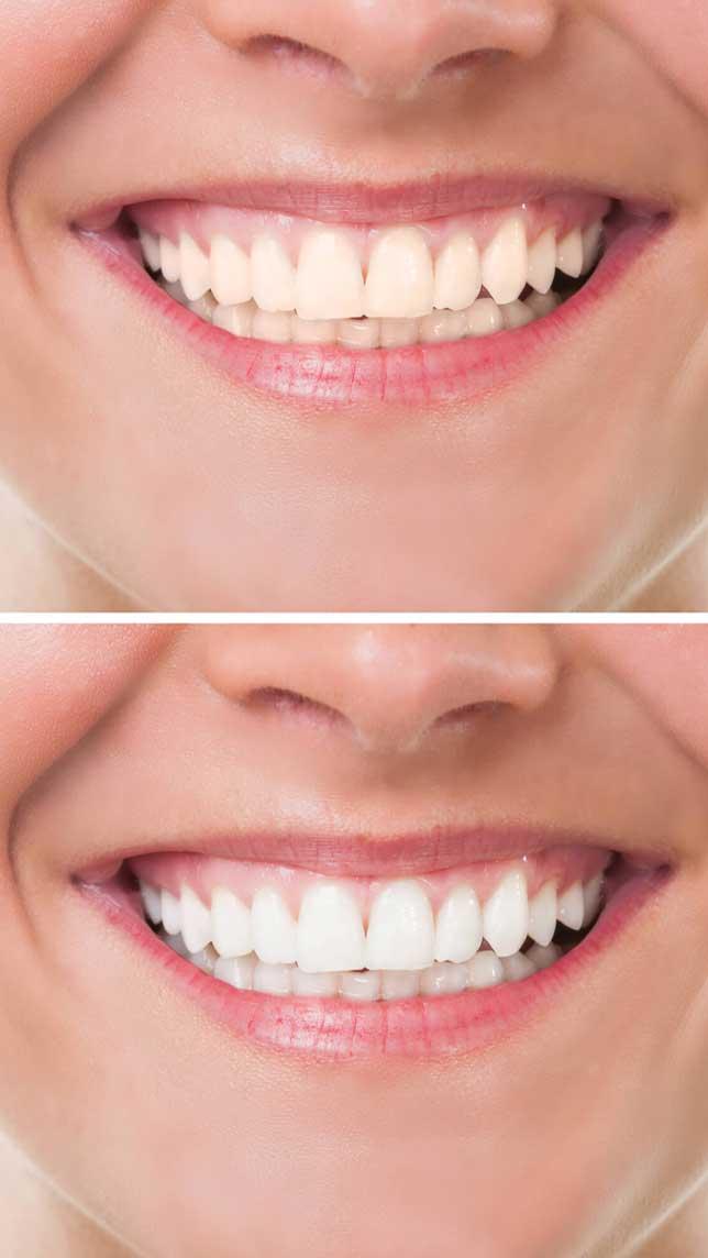 best-dentist-in-ogden-near-me