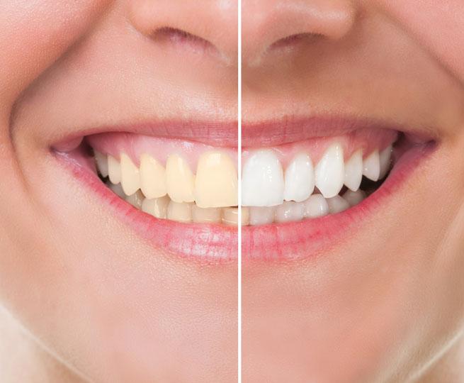 affordbale-ogden-cosmetic-dentist