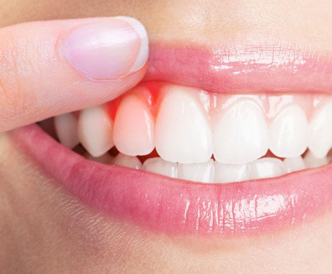 best-periodontist-in-ogden-near-me