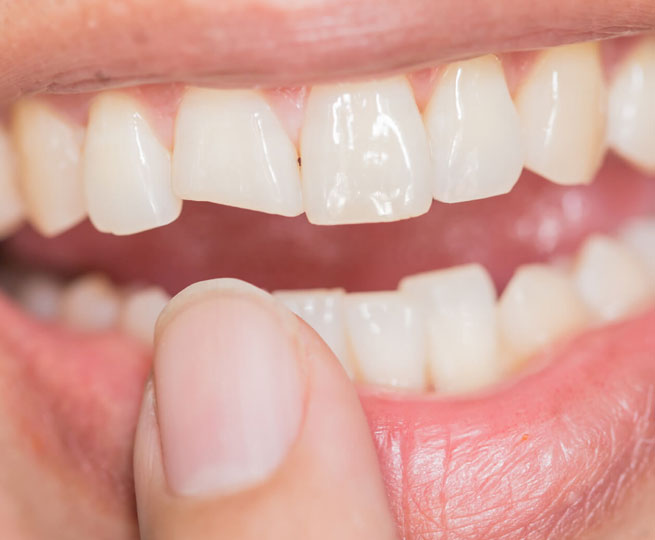 Best Tooth Repair Dentist Ogden UT
