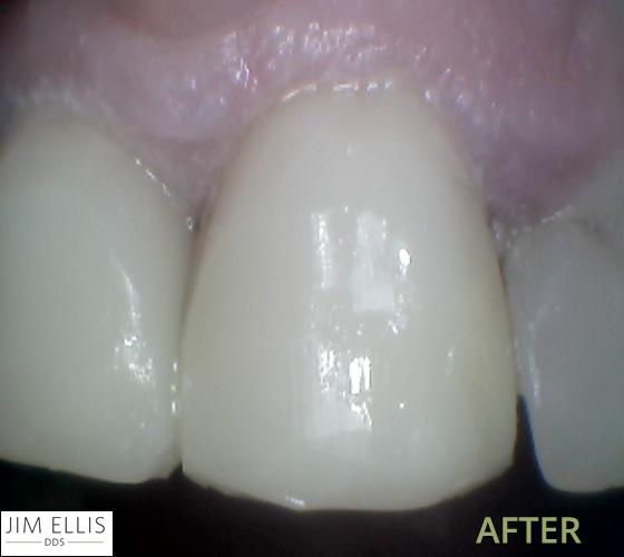 Ogden Dentist AFTER: Front tooth filling
