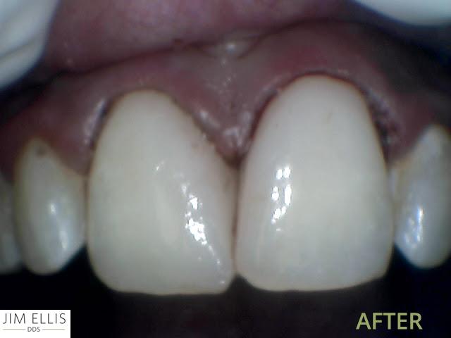 Ogden Dentist AFTER: Front Teeth