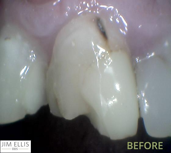 Ogden Dentist BEFORE: Front tooth filling