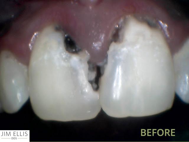 Ogden Dentist BEFORE: Front Teeth