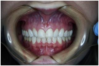 Dental Maintenance