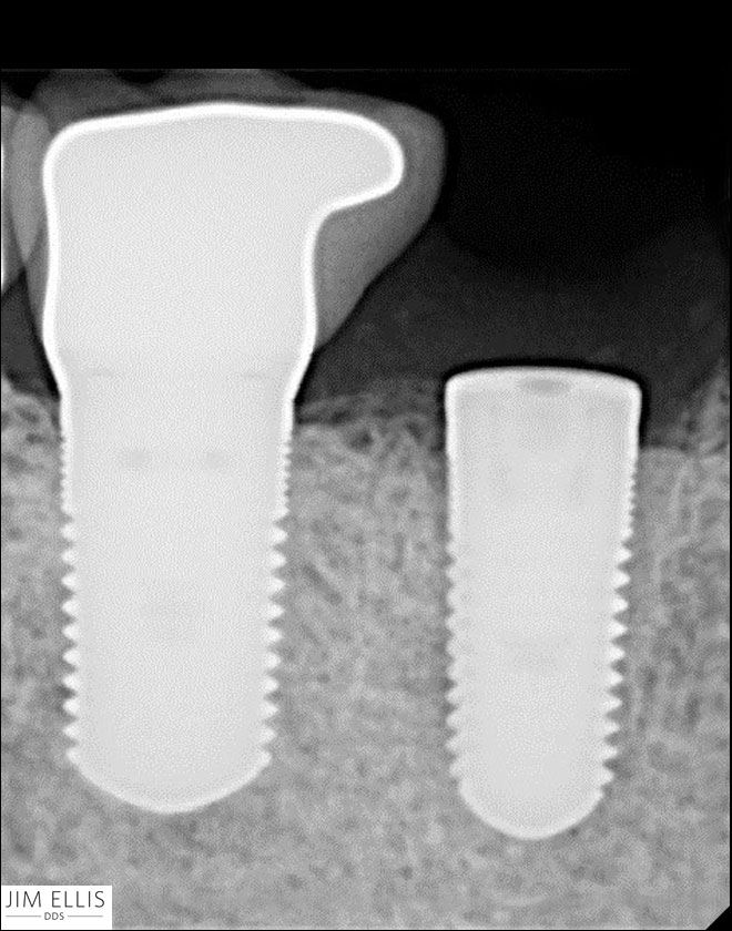 After tooth implants