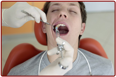 Wisdom Teeth Removal - Ogden Dentist